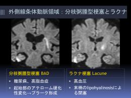 分枝粥腫型梗塞 BAD ラクナ梗塞 Lacune