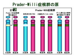 Prader-Wiili症候群の原因