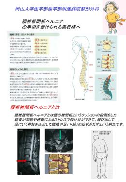 腰椎椎間板ヘルニアの手術を受られる患者様へ