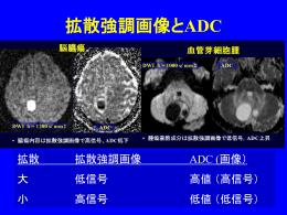 拡散強調画像とADC
