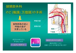 頭頸部外科 のど(喉頭・下咽頭)の手術