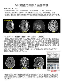 MRI検査の実際:頭部領域