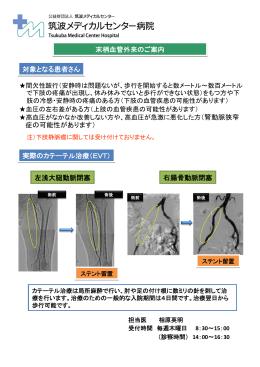 末梢血管外来のご案内 実際のカテーテル治療(EVT) 左浅大腿動脈