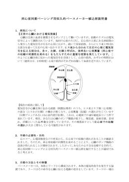 両心室同期ペーシング用恒久的ペースメーカー植込術説明書