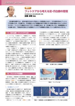 フットケアから考える足・爪白癬の管理