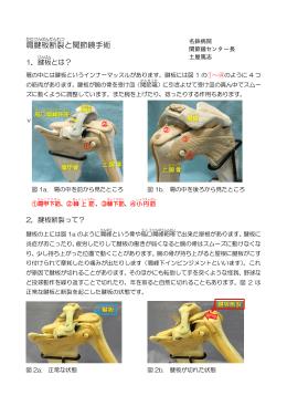 肩腱板断裂について(PDF)