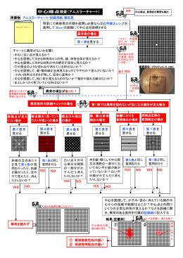 中心暗点検査(アムスラーチャート)