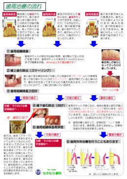 歯周治療の流れ - なかむら歯科