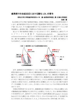 歯周病での炎症反応における酸化 LDL の寄与