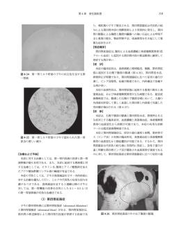 (3)第四胃拡張症