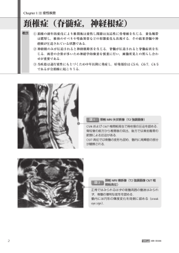 頚椎症(脊髄症,神経根症)