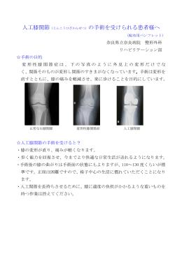 人工膝関節(じんこうひざかんせつ)の手術を受けられる患者様へ