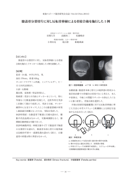膝蓋骨分裂骨片に対し反転骨移植による骨接合術を施行した 1 例