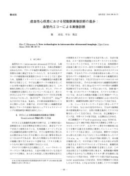 虚血性心疾患における冠動脈画像診断の進歩: OCT(optical