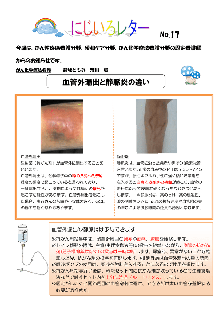 No.17 血管外漏出と静脈炎の違い
