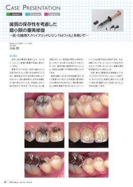 歯質の保存性を考慮した最小限の審美修復―前・臼歯用ナノハイブリッド