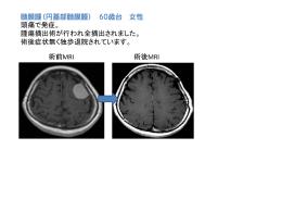 髄膜腫(円蓋部髄膜腫)