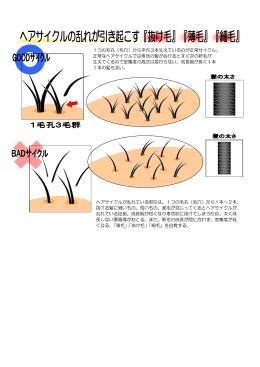 1つの毛孔(毛穴)から平均3本生えているのが正常サイクル。 正常な