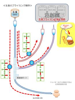 テルイ式 抗がん剤被ばく防止輸液回路設計図(一部)