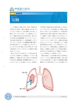 気胸 - 日本呼吸器学会