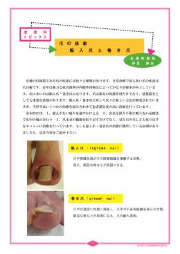 爪の疾患 陥入爪と巻き爪