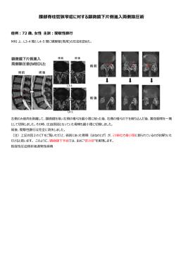 腰部脊柱管狭窄症に対する顕微鏡下片側進入両側除圧術