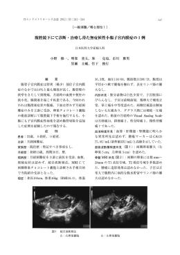 腹腔鏡下にて診断・治療し得た無症候性小腸子宮内膜症の1例