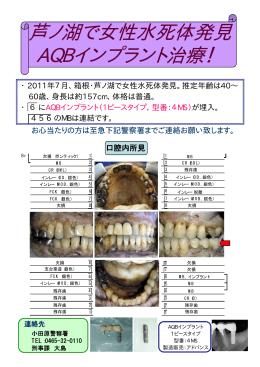 芦ノ湖で女性水死体発見 AQBインプラント治療! インプラント治療
