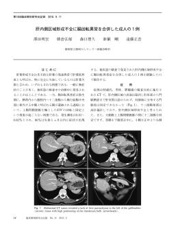 肝内側区域形成不全に腸回転異常を合併した成人の  例