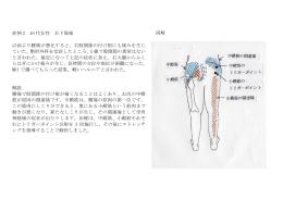症例 2 40 代女性 右下肢痛 以前より腰痛が悪化すると、右股関節の