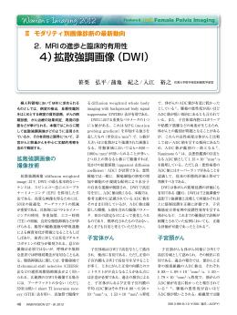 4)拡散強調画像(DWI)
