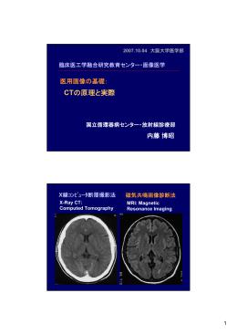 CTの原理と実際
